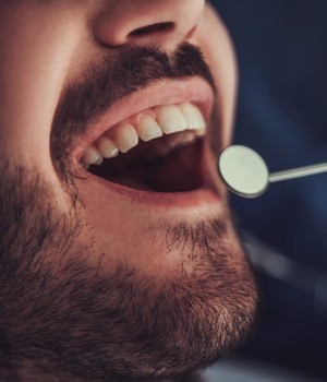 Tooth Replacement Market Research Report