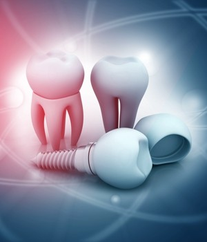 Dental Implants Market Research Report