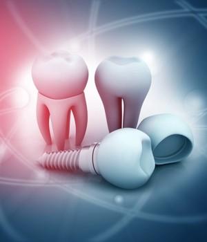 Dental Imaging  Market Research Report