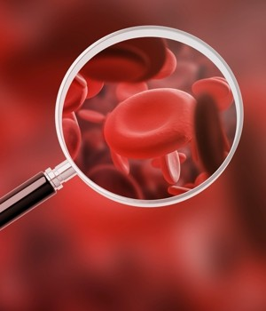 Hematology Testing Market Research Report